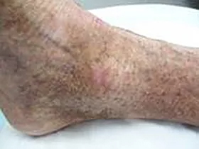 Foot and ankle rash - after ETI Wound Healing