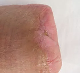 Successful wound healing after ETI Wound Healing Center