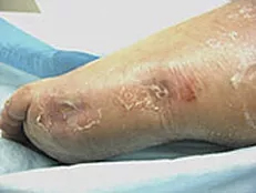Successful foot healing after following ETI treatment plan