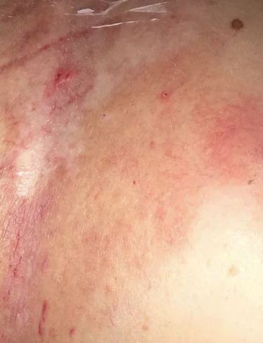 Successful wound healing - after ETI